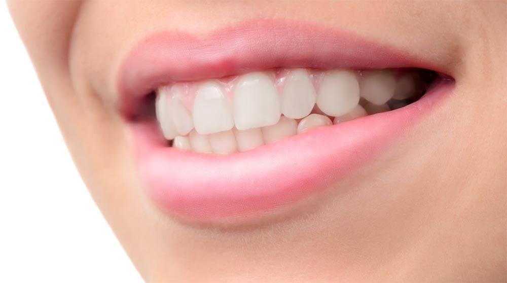 phlearn PS修图视频教程 牙套的处理 收集整理 第2张