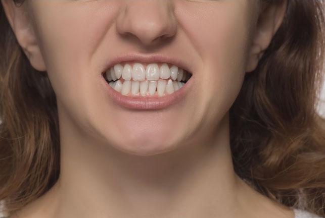 piximaperfect PS修图教程 黄色牙齿的变白 收集整理 第1张