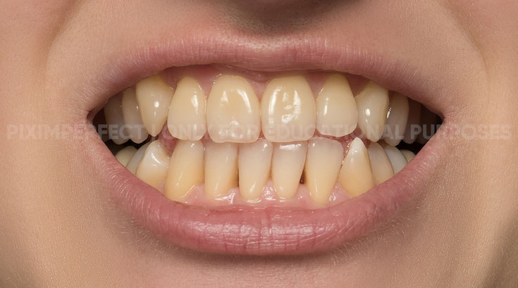 piximaperfect PS修图教程 黄色牙齿的变白 收集整理 第2张